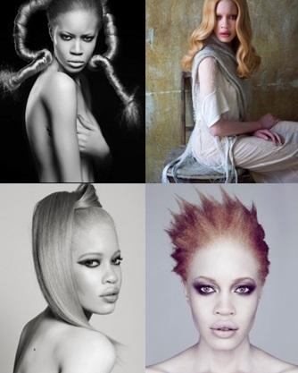 modeli-albinosy-1