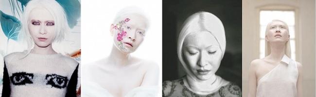 modeli-albinosy