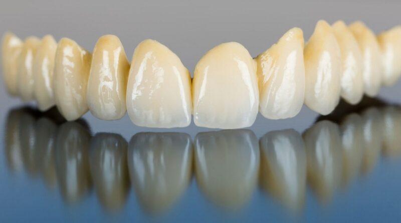 Возможность протезирования зубов с помощью металлической керамики